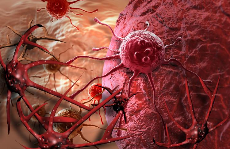 3 nguyên tắc vàng chặn đứng sự hình thành khối u trong cơ thể