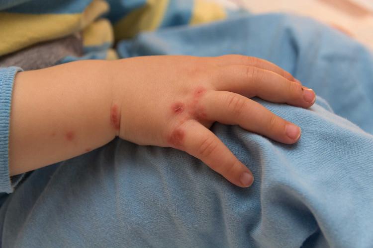 5 dịch bệnh thường gặp người dân cần biết