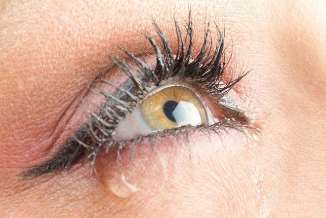 9 dấu hiệu bất thường ở mắt cảnh báo sức khỏe có vấn đề