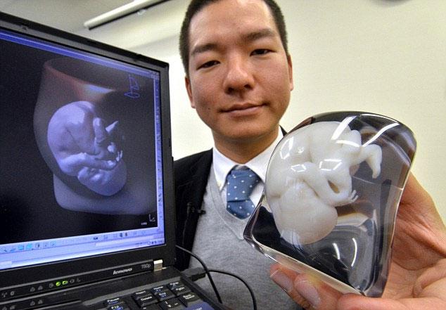 Bế được con trước lúc chào đời bằng công nghệ 3D