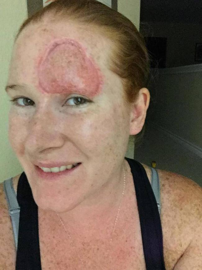 Bệnh ung thư hiếm gặp ẩn sau nốt ruồi