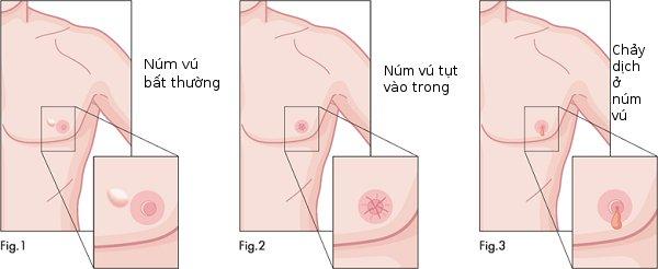 Các dấu hiệu báo động ung thư vú ở nam giới
