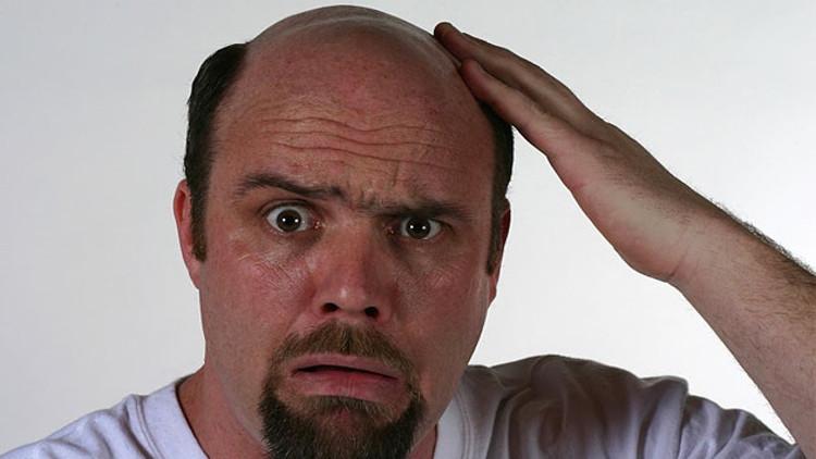 Các nhà khoa học vô tình tìm ra phương pháp đột phá trị hói đầu