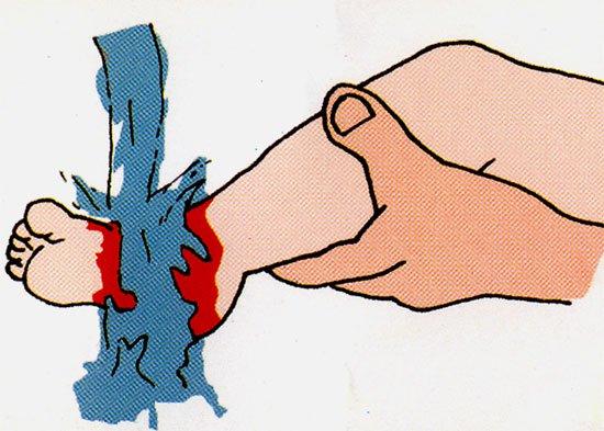 Cách sơ cứu khi bị bỏng