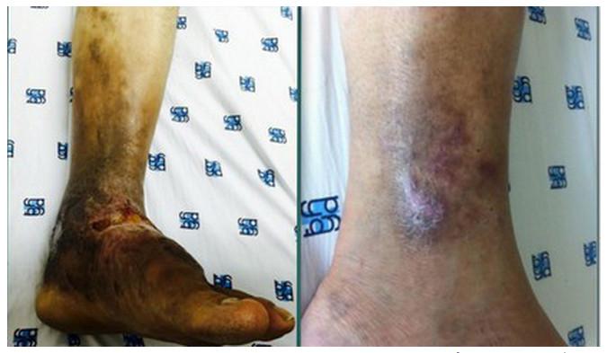Căn bệnh nguy hiểm khiến bạn có thể phải cắt chân