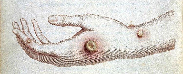 Cậu bé đột nhiên mắc phải căn bệnh lạ tưởng đã tuyệt chủng từ thế kỷ 18