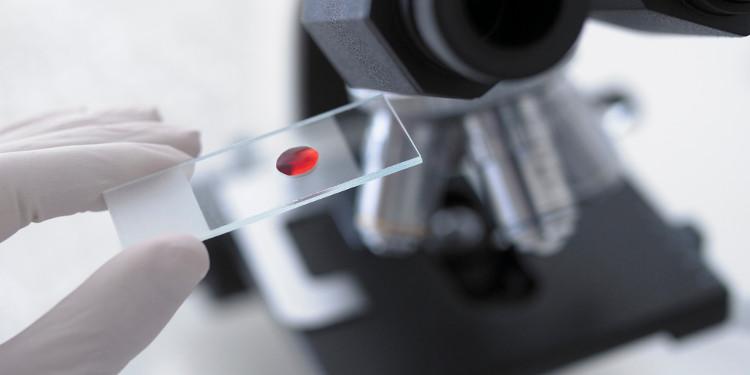 Chẩn đoán sớm ung thư tuyến tụy bằng một giọt máu