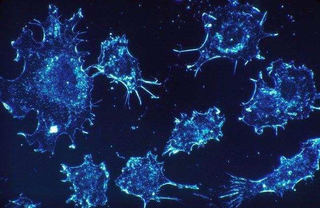 Chỉ với công nghệ này, các tế bào ung thư sẽ tự sát và huynh đệ tương tàn