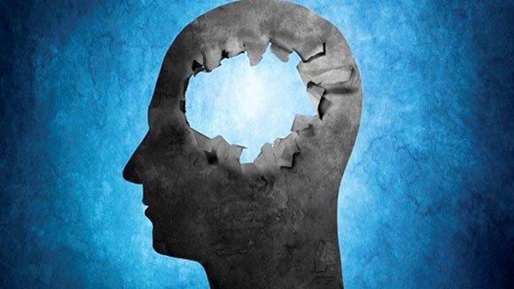 Chuyện lạ về những người không có não