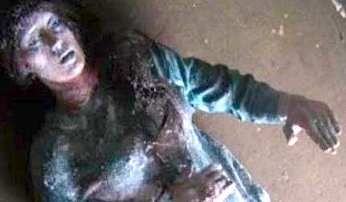 Cô gái hồi sinh sau một đêm bị đóng băng khiến y học không thể lý giải