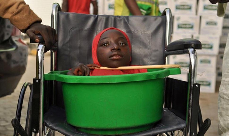 Cô gái Sọ Dừa ở Nigeria đã qua đời đúng ngày lễ Giáng sinh
