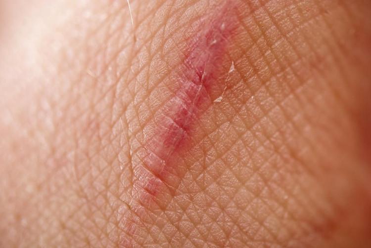 Cuối cùng khoa học cũng tìm ra cách trị thương mà không để lại sẹo