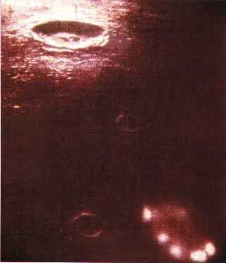Đã nhìn thấy người ngoài hành tinh trên mặt trăng?