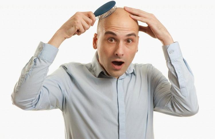 Đã tìm ra tế bào gây hói đầu và bạc tóc