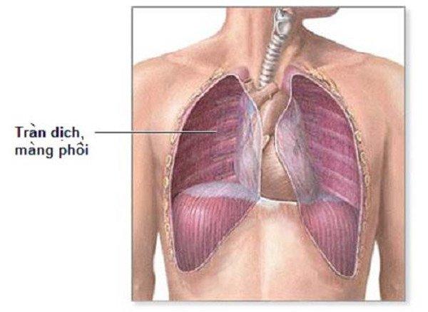 Dấu hiệu của tràn dịch màng phổi và cách điều trị