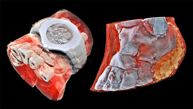 Đây là hình ảnh X-quang màu 3D đầu tiên trên thế giới, đừng xem nếu bạn yếu tim