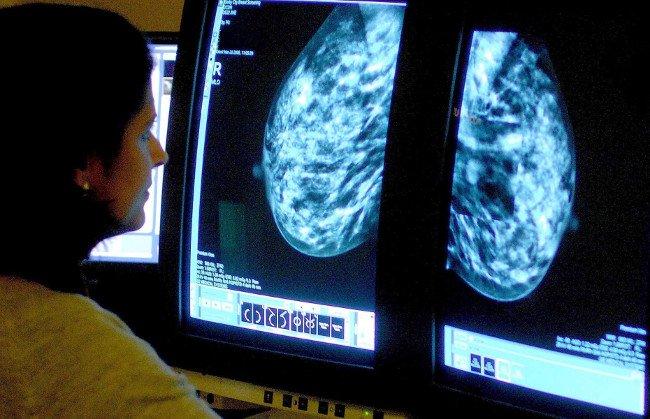 Dậy thì sớm 1 năm, nguy cơ ung thư tăng ít nhất 6%