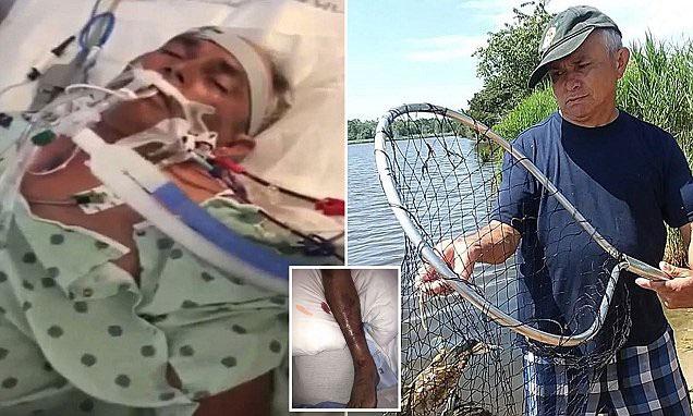 Đi bắt cua, người đàn ông không ngờ mắc phải loại khuẩn gây rụng cả tay lẫn chân