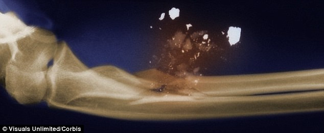 Điều khủng khiếp gì sẽ xảy ra khi cơ thể bị trúng một viên đạn?