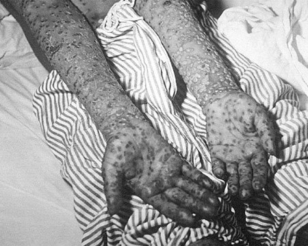 Độc chiêu chữa bệnh kinh điển nhất thế giới loài người
