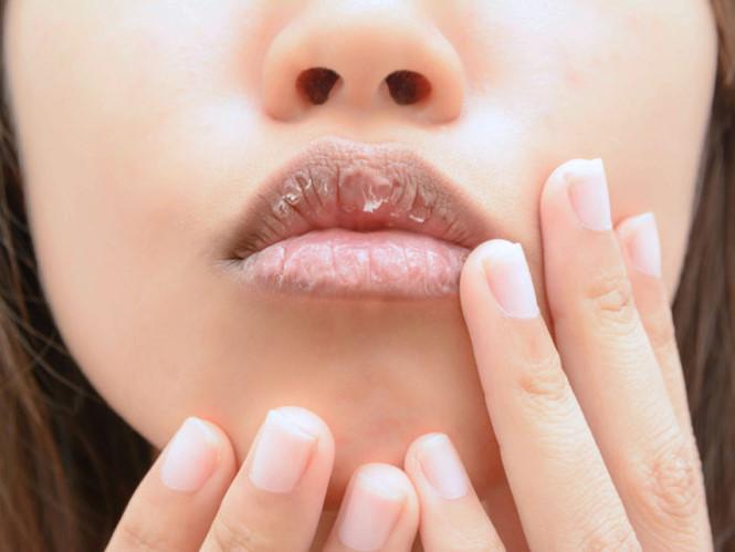 Đôi môi tiết lộ điều gì về sức khỏe của bạn?