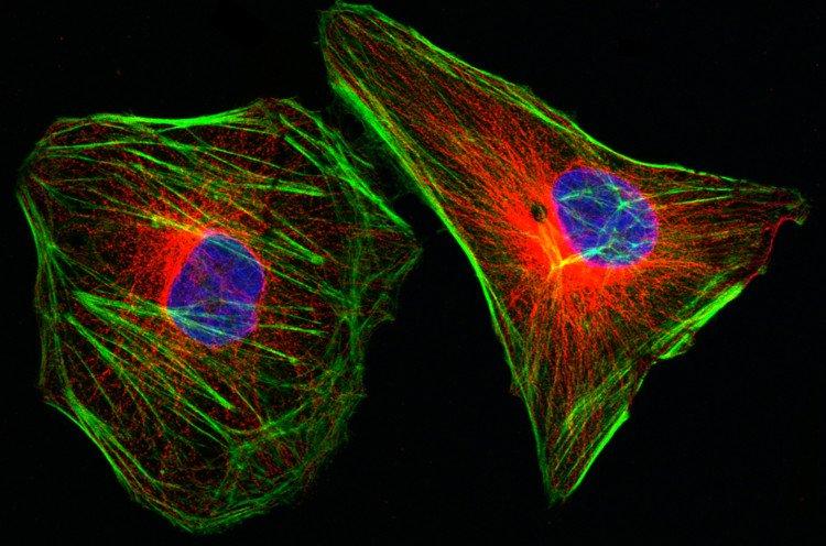 Hình ảnh tế bào ung thư dưới kính hiển vi