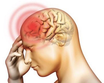 Hội chứng màng não là gì?