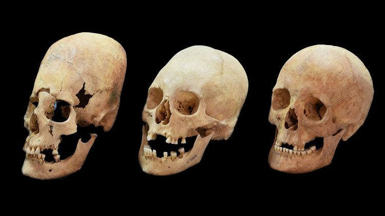 Hộp sọ dài như người ngoài hành tinh của phụ nữ Đông Âu cổ