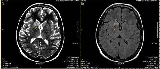 Khi tế bào bạch cầu nổi loạn và tự tấn công não bộ, đây là những gì sẽ diễn ra