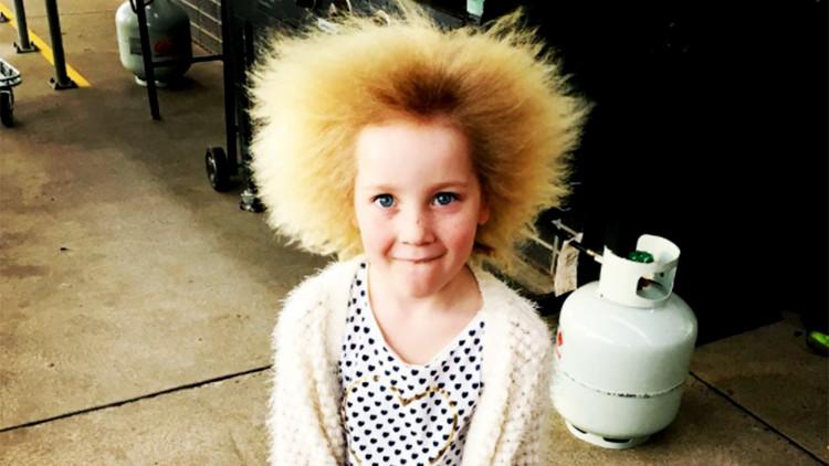 Kỳ lạ cô bé có mái tóc dựng ngược không thể chải nổi
