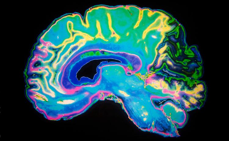 Lạc đường là dấu hiệu đầu tiên của bệnh Alzheimer