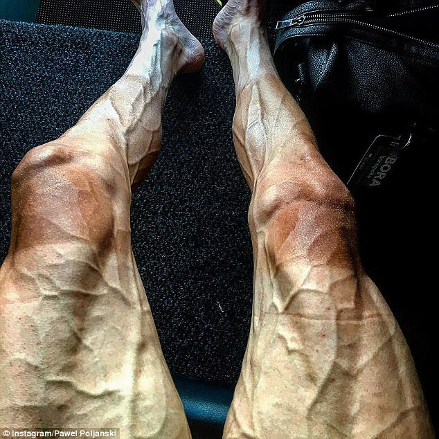 Lý do khiến chân của vận động viên đua xe đạp biến dạng khủng khiếp