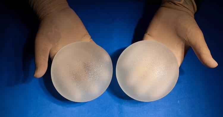 Mỹ cảnh báo túi nâng ngực gây ung thư hiếm và khó chữa