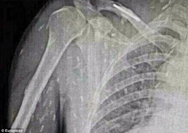 Người đàn ông ăn sashimi thấy ngứa da, chụp ảnh X-quang hình ảnh hiện ra đáng sợ
