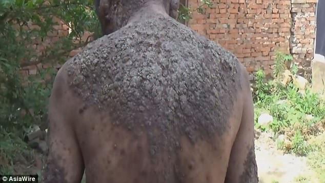 Người đàn ông bị cả làng xua đuổi vì có làn da như thân cây