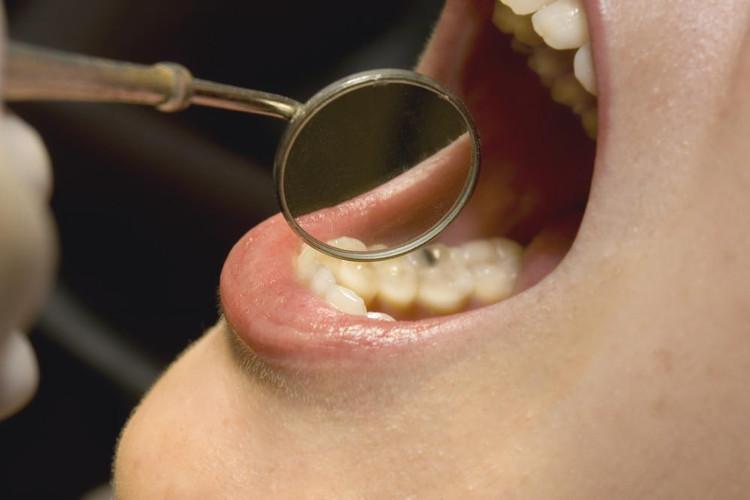Nguy cơ ung thư ở người mắc bệnh nướu răng