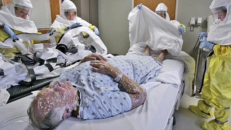 Nhà khoa học Canada hồi sinh virus đã tuyệt chủng từng giết hại 500 triệu người