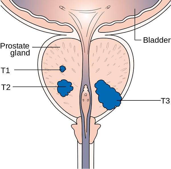 Những bệnh ung thư thường gặp ở nam giới