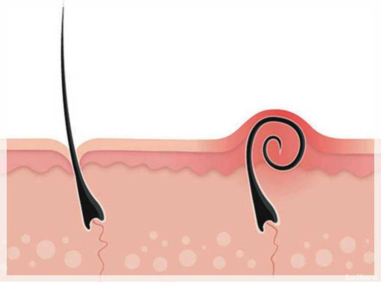 Những hậu quả đáng lo ngại khi nhổ lông nách bằng nhíp