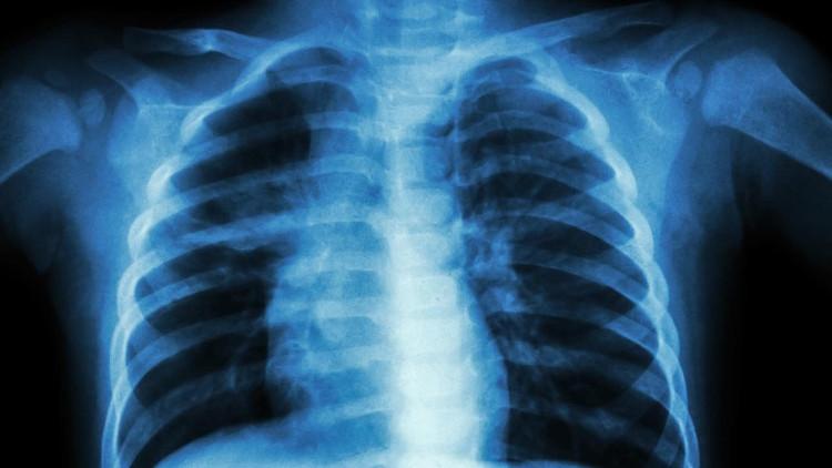 Phát hiện đáng kinh ngạc: Phổi không chỉ hô hấp mà có thể tạo ra máu