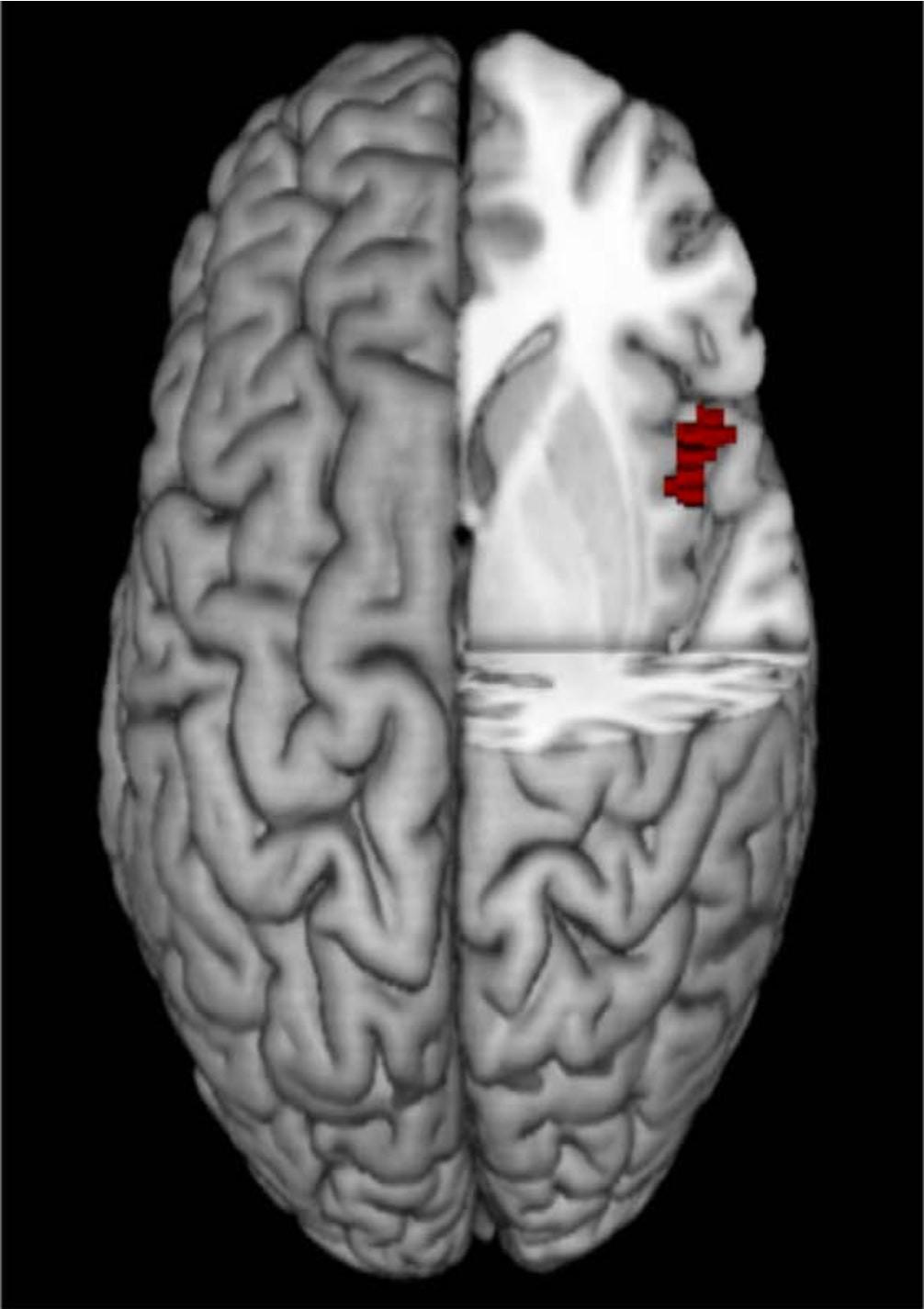 """Phát hiện nơi quyết định """"máu anh hùng"""" trong não người"""