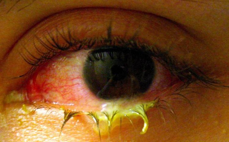 Phát hiện sốc: Trong mắt tồn tại 1 cộng đồng vi khuẩn