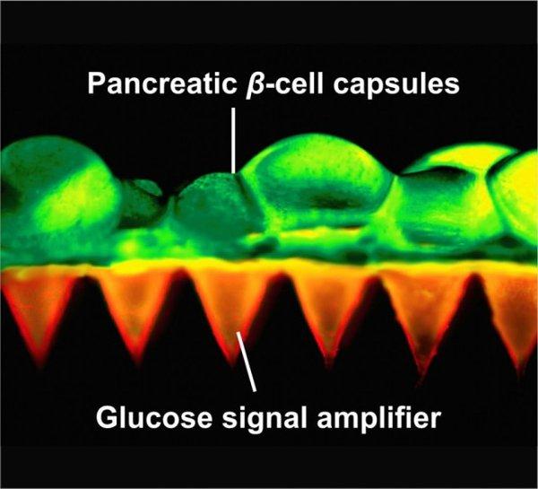 Phát minh giúp người bị tiểu đường không cần phải chú ý tiêm insulin thường xuyên