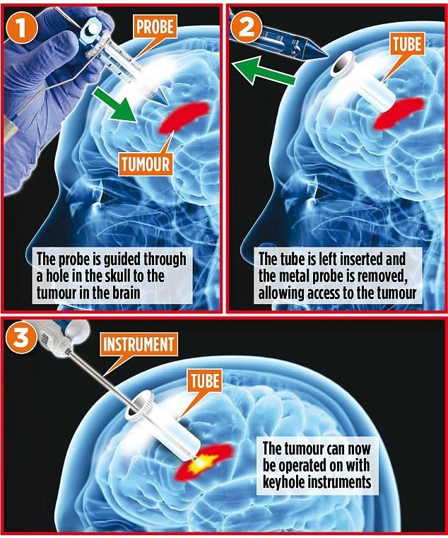 Phương pháp phẫu thuật u não không cần tách hộp sọ