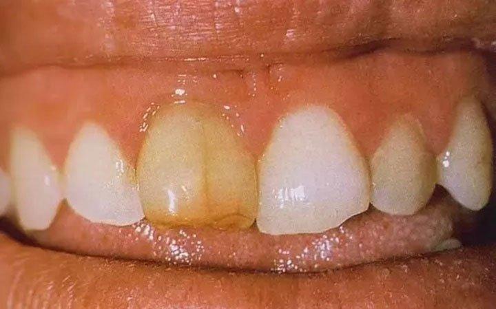 Tại sao răng chúng ta bị ngả sang màu vàng?