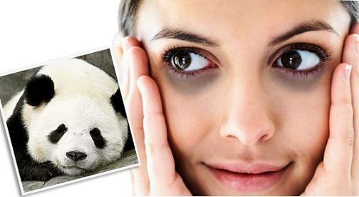 Tại sao thức khuya mắt hay bị thâm quầng?