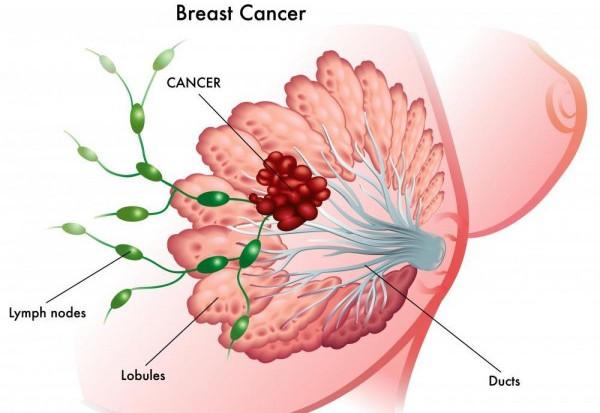 Tất cả những điều bạn cần biết về tầm soát ung thư