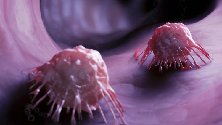 Tàu ngầm siêu nhỏ mang thuốc diệt tế bào ung thư