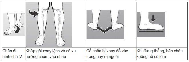 Tìm hiểu về hội chứng bàn chân bẹt - nguyên nhân và cách điều trị