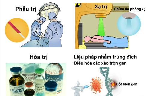 Ung thư được chữa trị bằng cách nào?